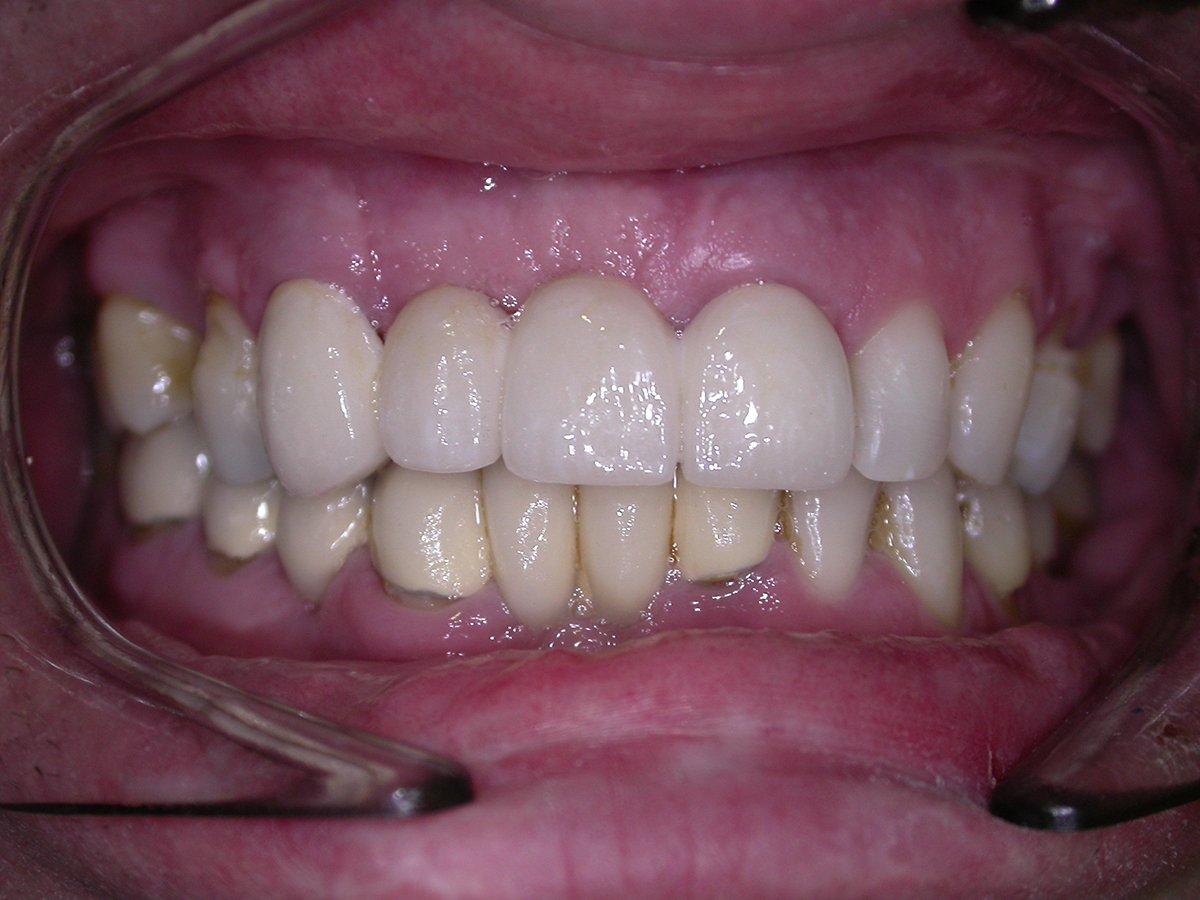 Puente fijo dentosoportado