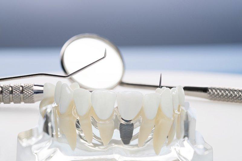 Implantes Dentales Clínica Dental Manuel Rodríguez