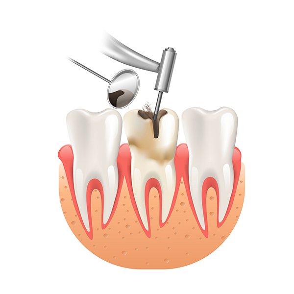 Odontología conservadora Clínica dental Manuel Rodríguez