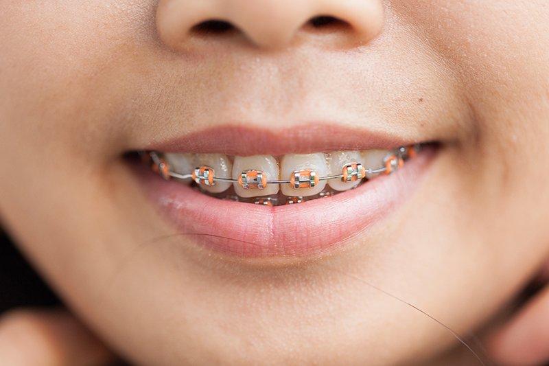 Ortodoncia fija con Brackets Metálicos