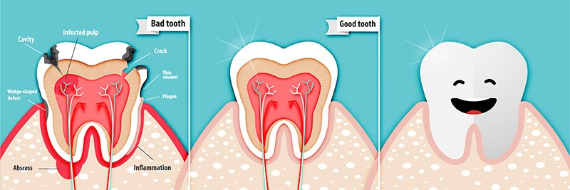 Periodoncia Clíinica Dental Manuel Rodríguez
