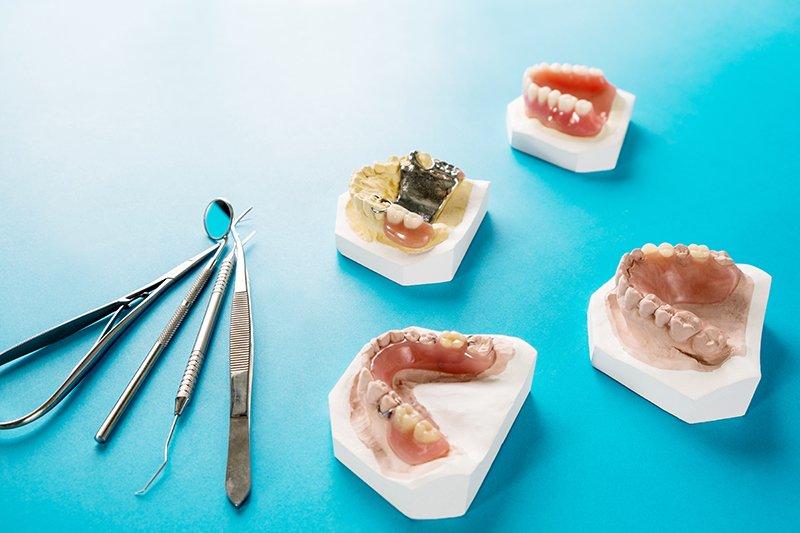 Prótesis Metálica o Resina Retenida con Ganchos en Dientes