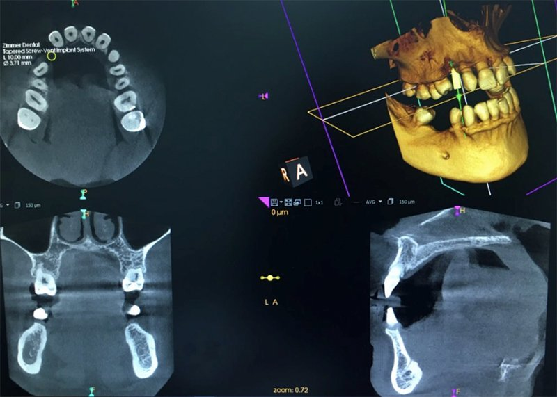 Radiología digital 3D para diagnosis dientes