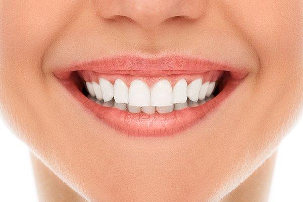 Tratamiento Estética Dental